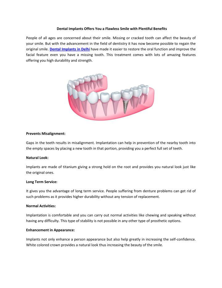 Dental Implants Offers You a Flawless Smile with Plentiful Benefit...