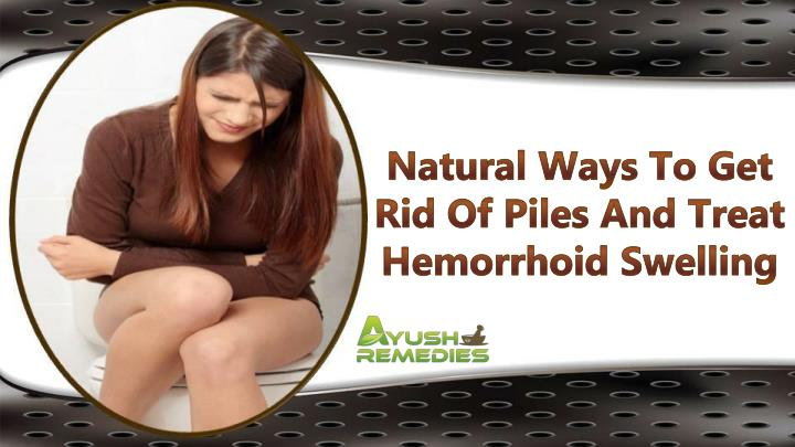 Natural Ways To Get Rid Of Piles And Treat Hemorrhoid Swelling