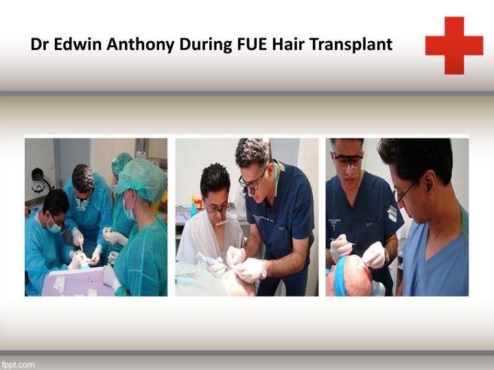 Dr Edwin Anthony During FUE Hair Transplant