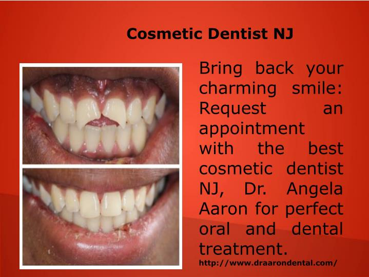 Cosmetic Dentist NJ