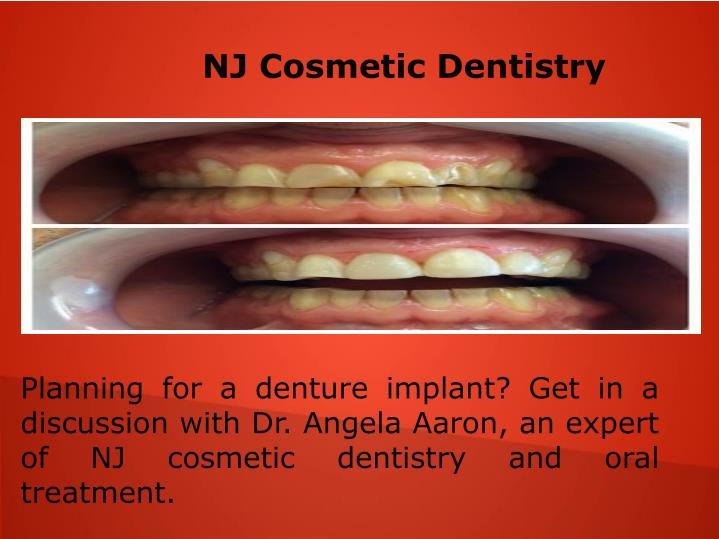 NJ Cosmetic Dentistry