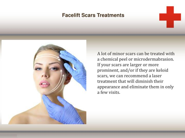 Facelift Scars Treatments