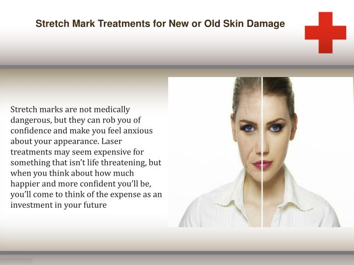 Stretch Mark Treatments for New or Old Skin Damage