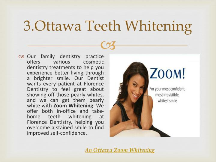 3.Ottawa Teeth Whitening
