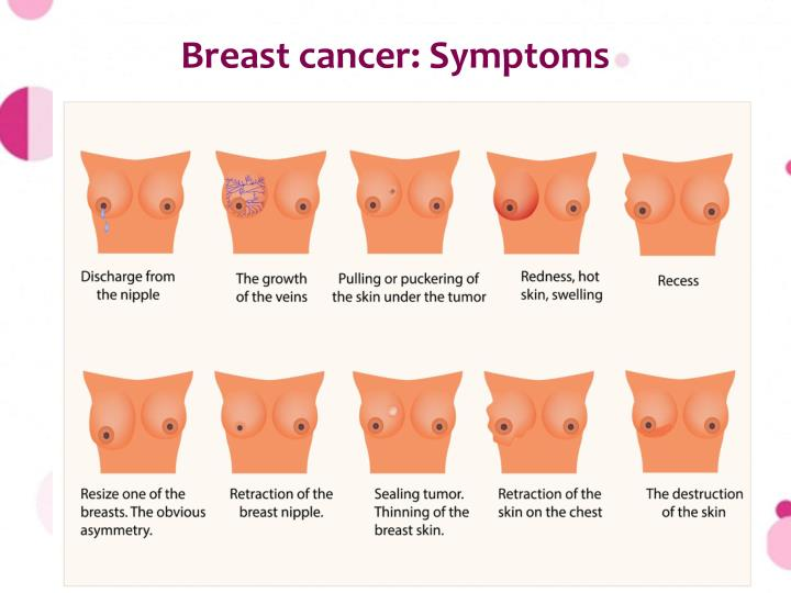 Breast cancer: Symptoms
