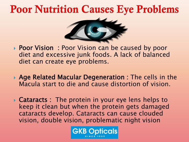 Poor nutrition causes eye problems