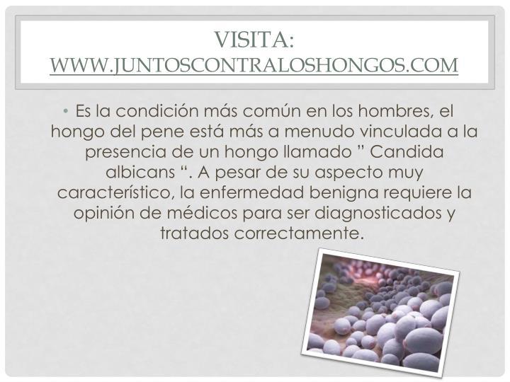 Visita: