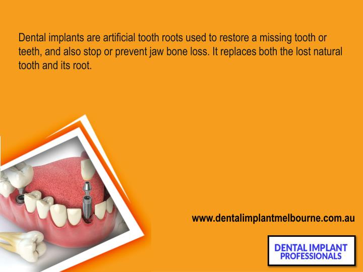 Dental implants are artificial tooth roots used to restore a missing tooth or teeth, and also stop o...
