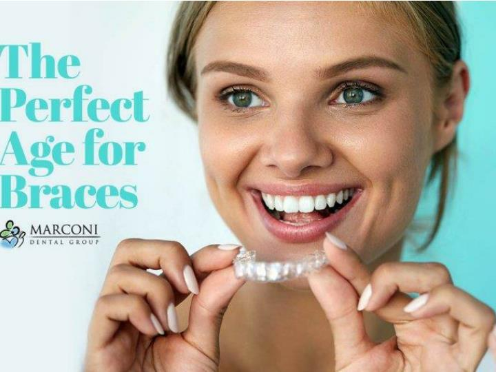 The zero braces option