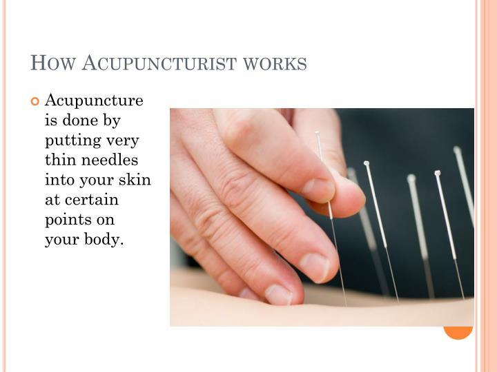 How Acupuncturist works