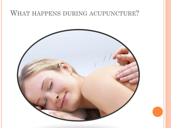 What happens during acupuncture?