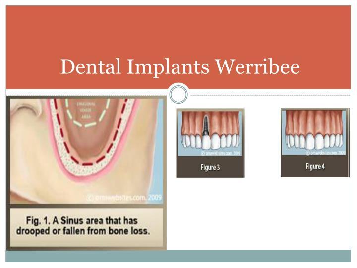 Dental Implants Werribee
