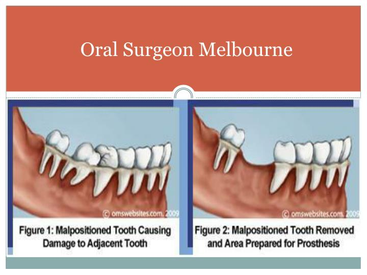 Oral Surgeon Melbourne
