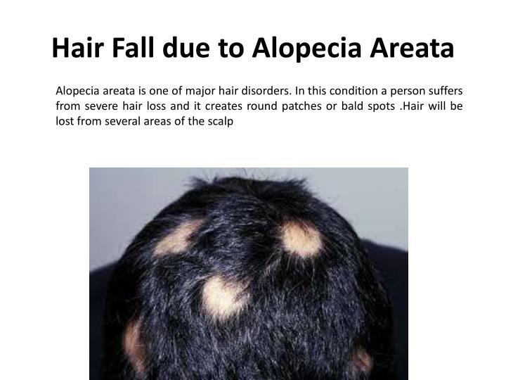 Hair Fall due to Alopecia Areata