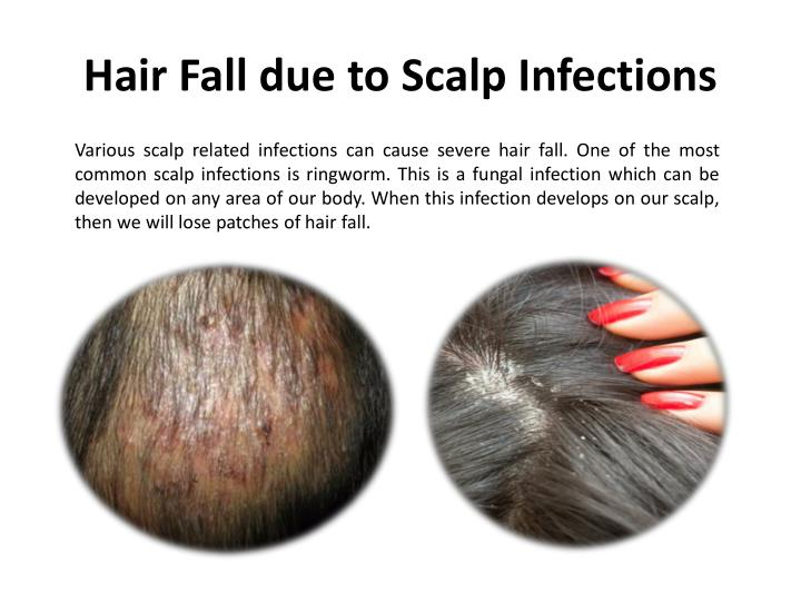 Hair Fall due to Scalp Infections