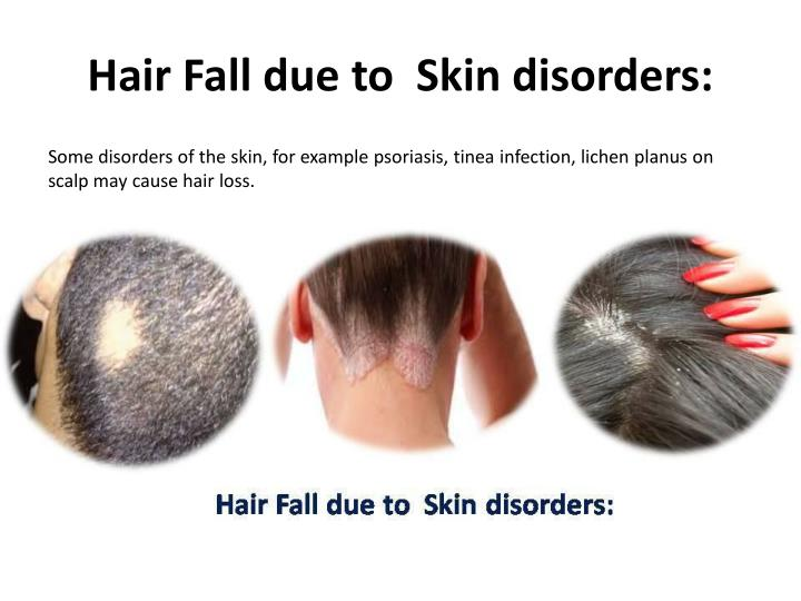 Hair Fall due to  Skin disorders: