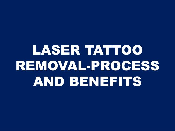 Laser tattoo removal process and benefits