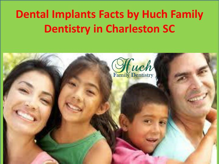 Dental Implants Facts by