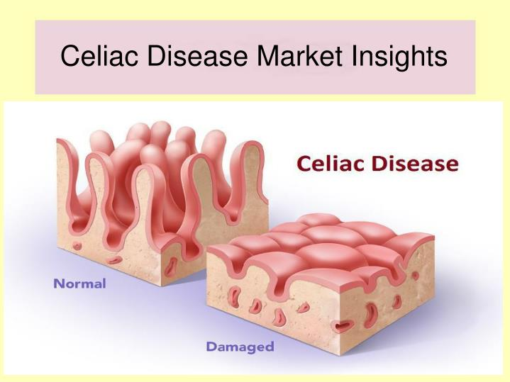 Celiac disease market insights