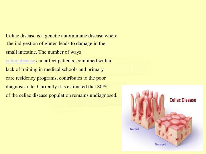 Celiac disease is a genetic autoimmune disease where