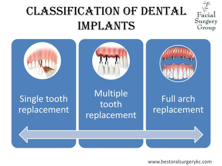Classification of Dental