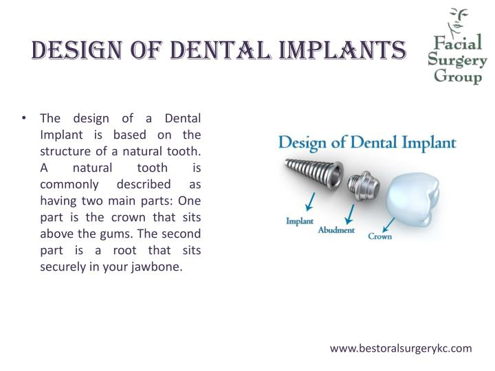 Design of Dental Implants