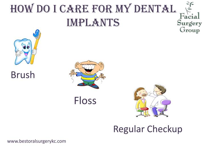 How do I care for my Dental Implants