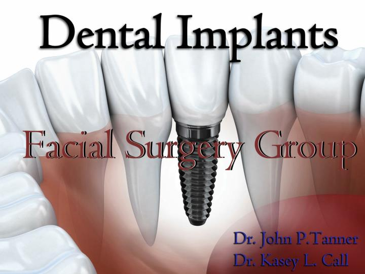 Tooth in a day dental implants in kansas city missouri