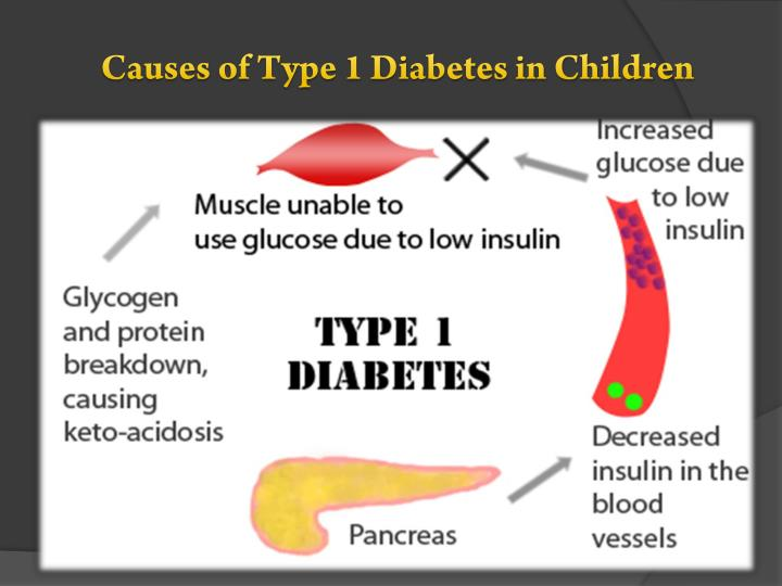 Causes of Type 1 Diabetes in Children