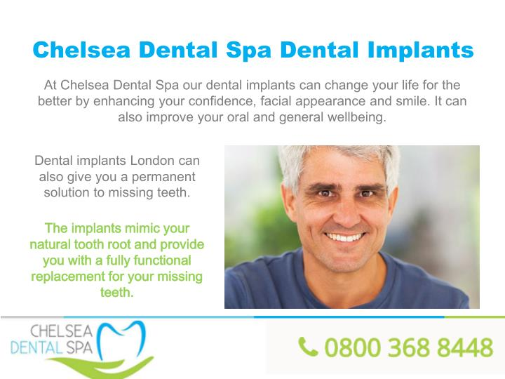 Chelsea Dental Spa Dental Implants