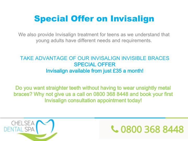 Special Offer on Invisalign