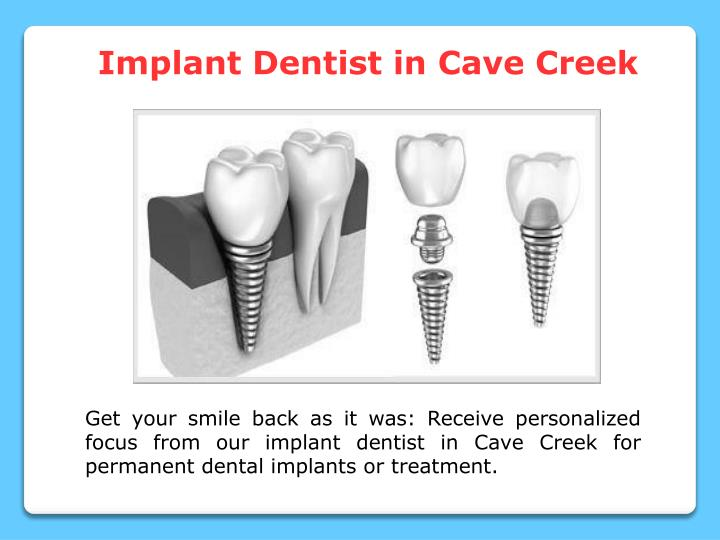 Implant Dentist in Cave Creek