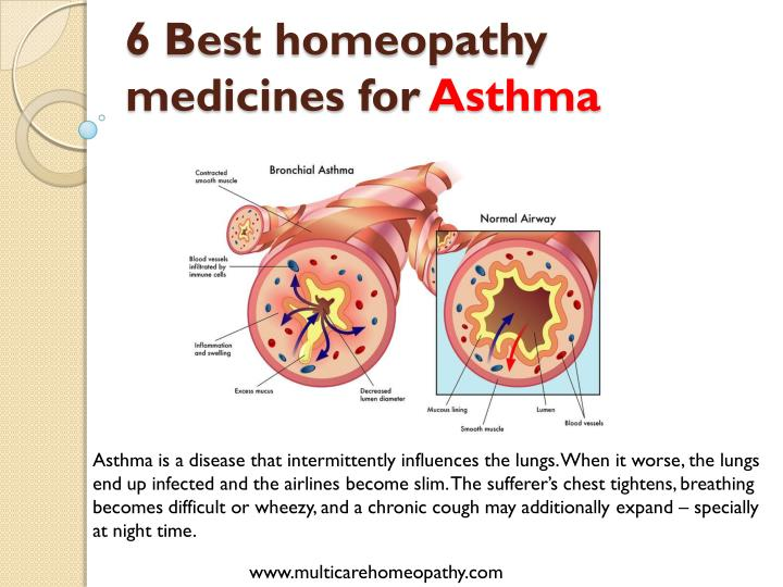 6 Best homeopathy