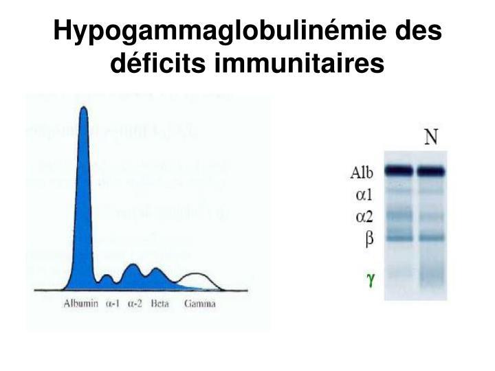 Hypogammaglobulinémie des