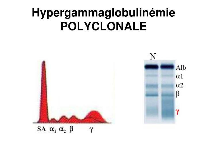 Hypergammaglobulinémie