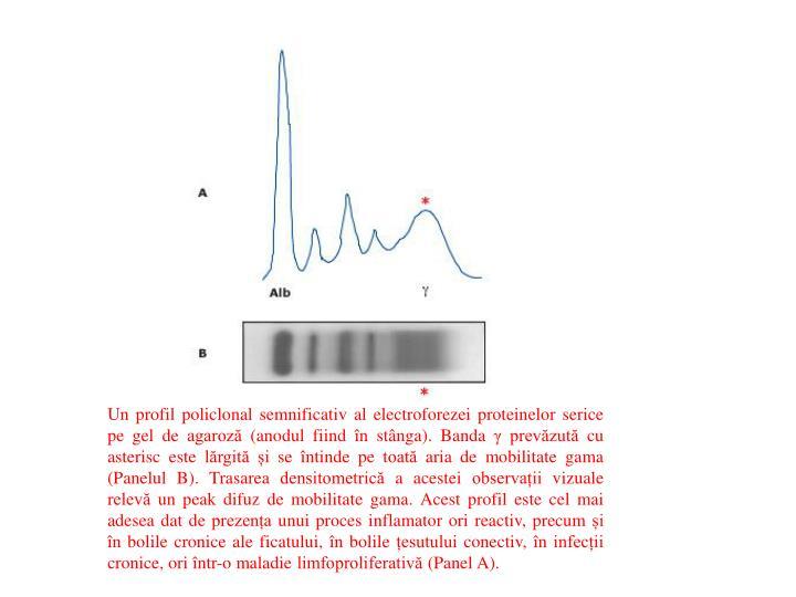 Un profil policlonal semnificativ al electroforezei proteinelor serice