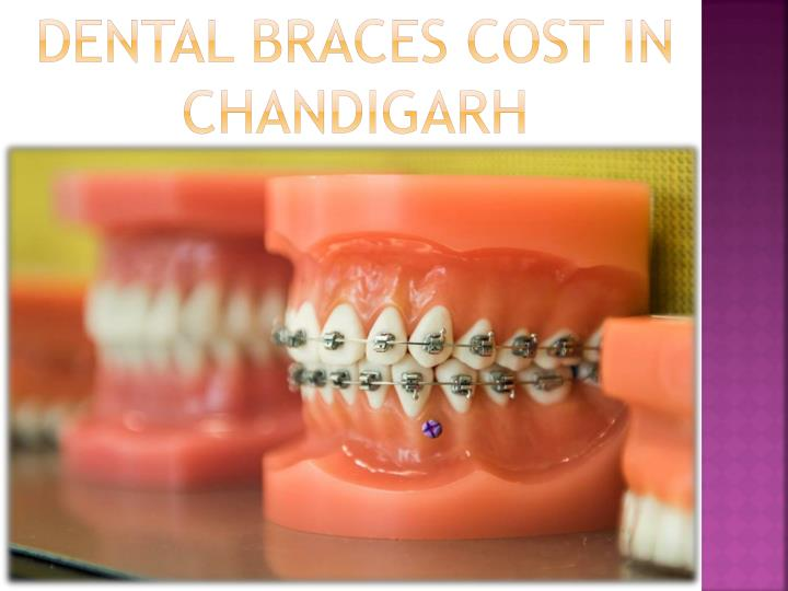 Dental Braces Cost in Chandigarh