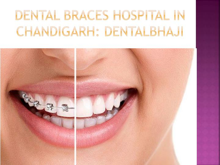 Dental Braces Hospital in Chandigarh: DentalBhaji