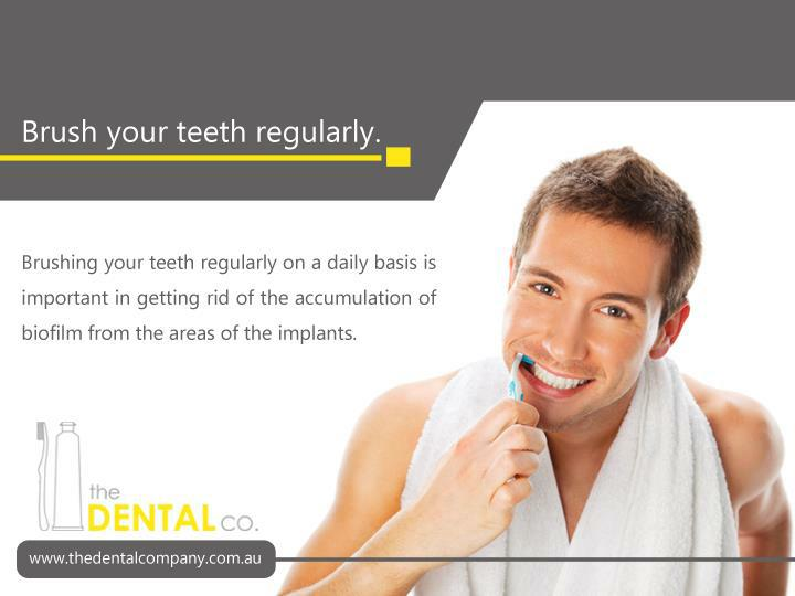 Brushing your teeth regularly on a daily basis is important in getting rid of the accumulation of biofilm from the areas of the implants.