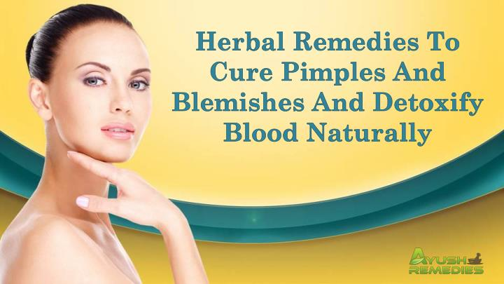 Herbal Remedies To Cure Pimples And Blemishes And Detoxify Blood Naturally