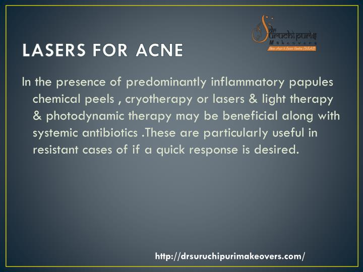 LASERS FOR ACNE