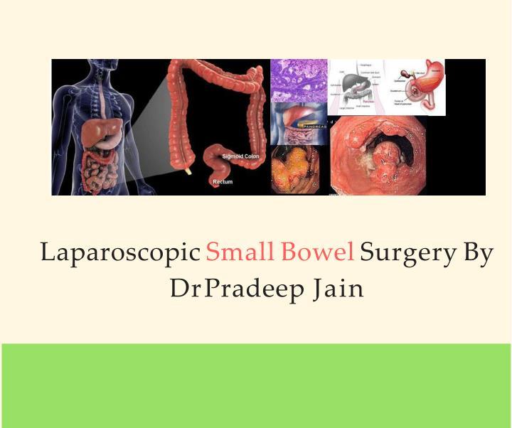 Laparoscopic