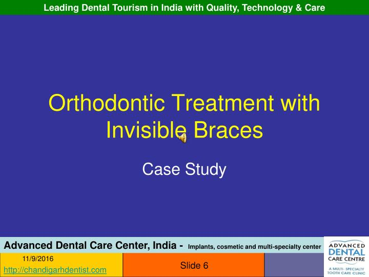 Orthodontic Treatment with Invisible Braces