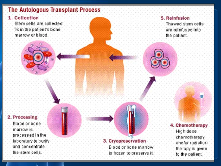 Bone marrow transplantation procedure