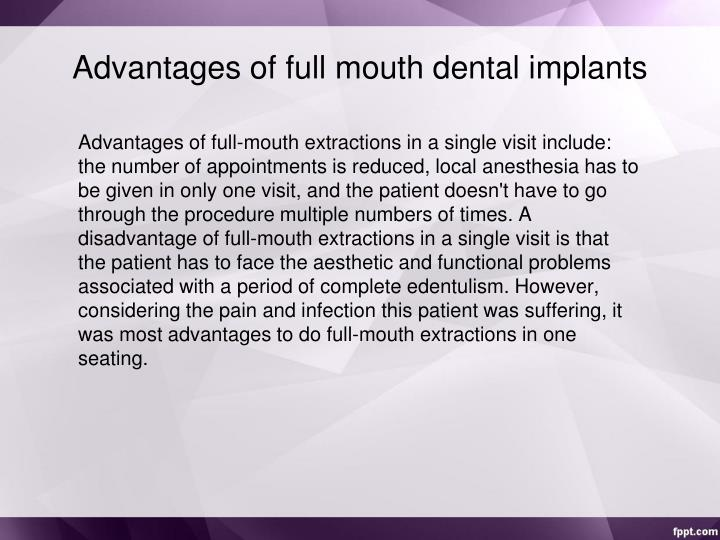 Advantages of full mouth dental implants