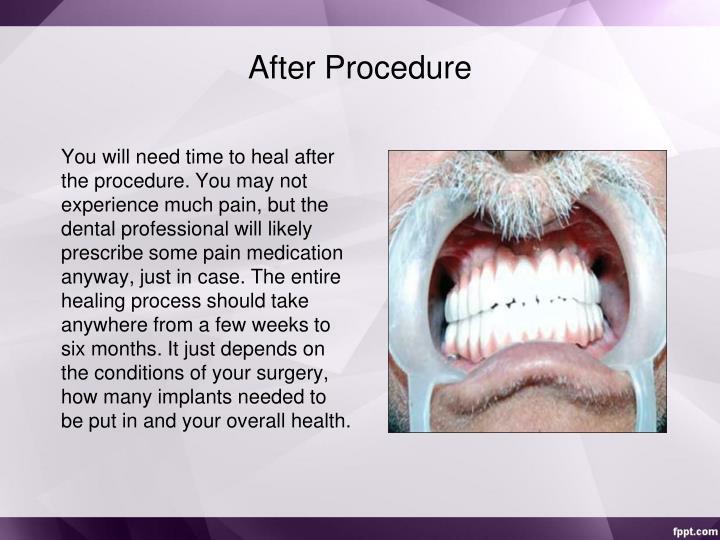 After Procedure