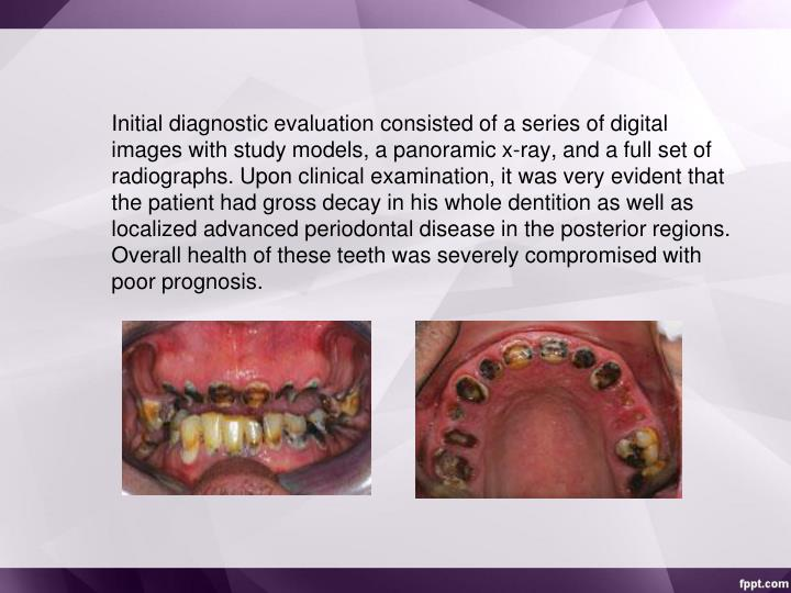 Initial diagnostic evaluation consisted of a series of digital images with study models, a panoramic x-ray, and a full set of radiographs. Upon clinical examination, it was very evident that the patient had gross decay in his whole dentition as well as localized advanced periodontal disease in the posterior regions. Overall health of these teeth was severely compromised with poor prognosis.