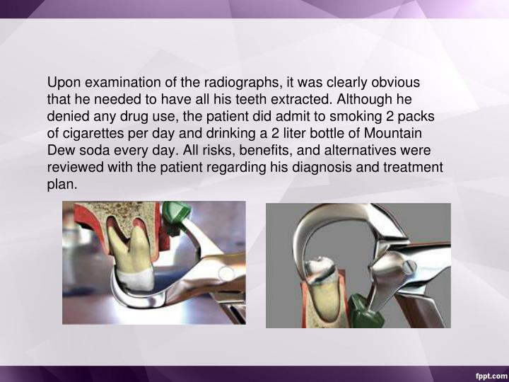 Upon examination of the radiographs, it was clearly obvious that he needed to have all his teeth extracted. Although he denied any drug use, the patient did admit to smoking 2 packs of cigarettes per day and drinking a 2 liter bottle of Mountain Dew soda every day. All risks, benefits, and alternatives were reviewed with the patient regarding his diagnosis and treatment plan.