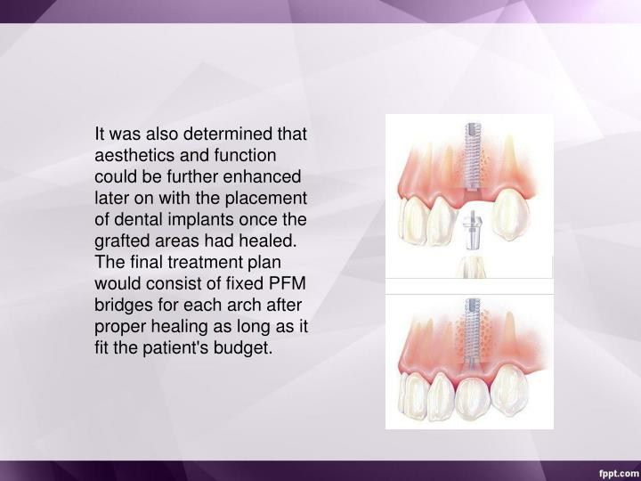 It was also determined that aesthetics and function could be further enhanced later on with the placement of dental implants once the grafted areas had healed. The final treatment plan would consist of fixed PFM bridges for each arch after proper healing as long as it fit the patient's budget.
