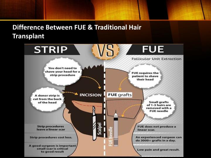 Difference between fue traditional hair transplant
